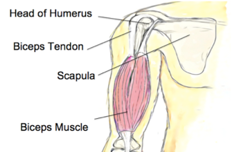 Biceps Tendinopathy