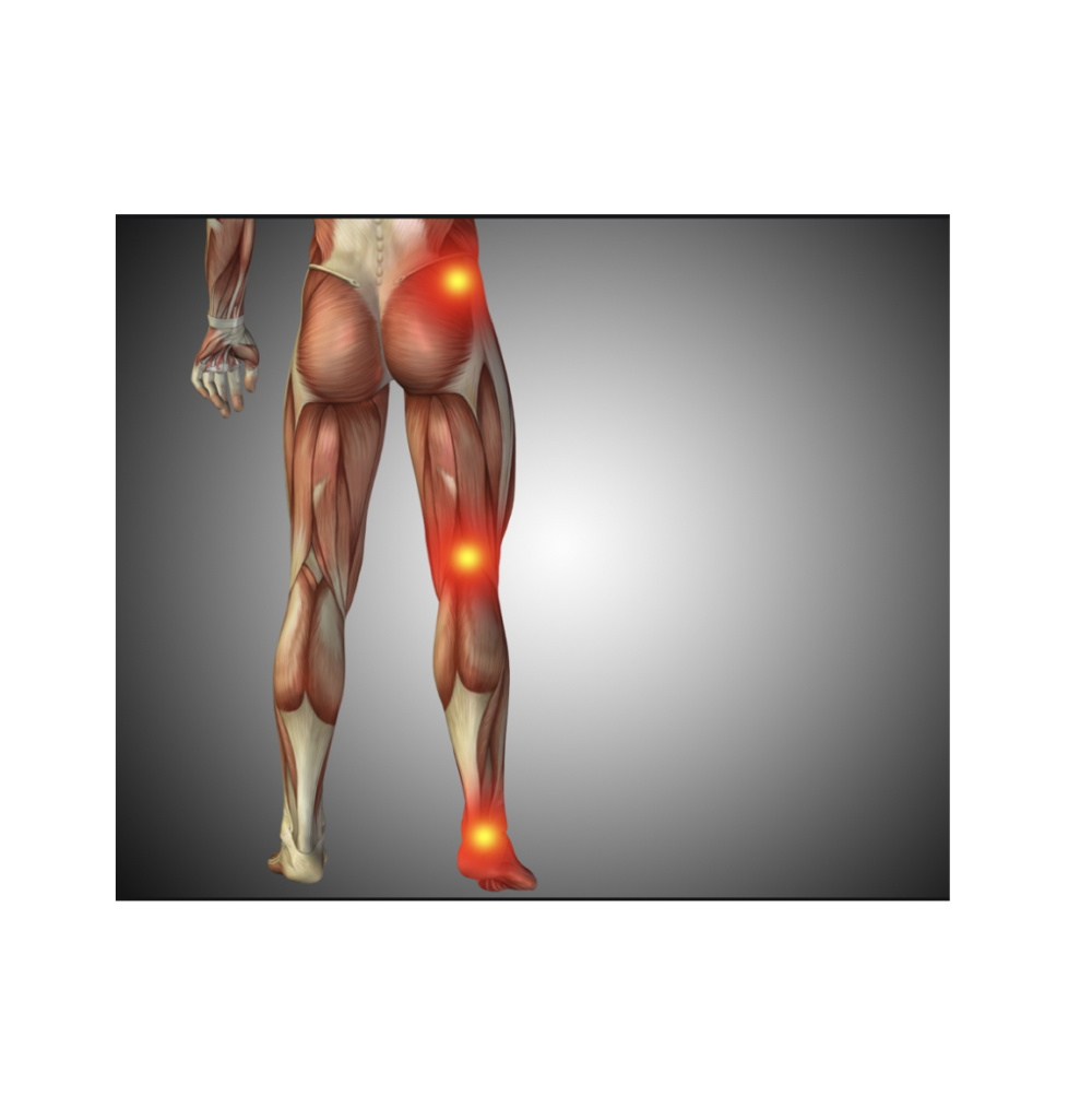 Back pain terminology: what are we really talking about?